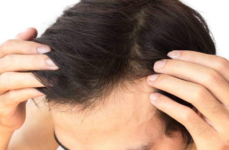 es-normal-que-se-caiga-el-cabello.jpg